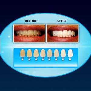 20 Minute Dental White RX